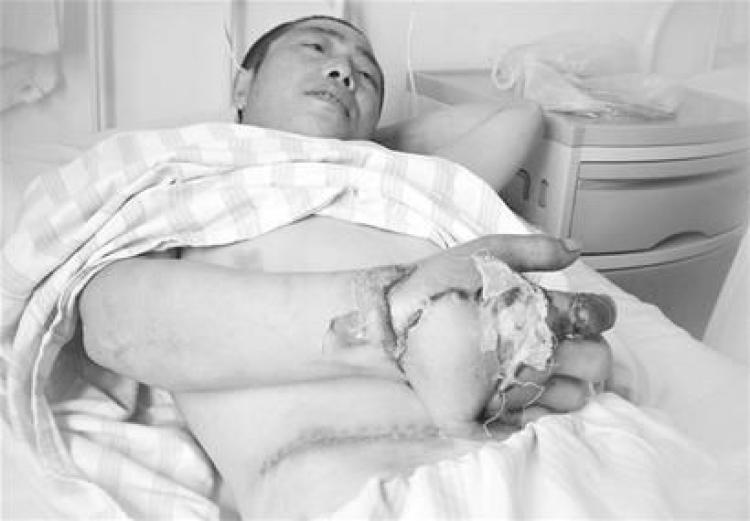 【深夜毒物】为防感染,他把手埋入了肚子