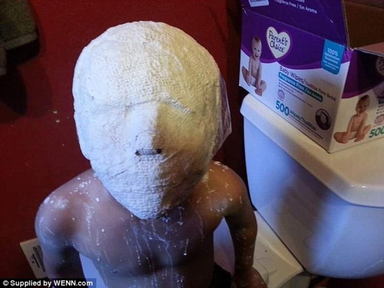 妈妈在儿子头上缠上绷带淋上石膏,万万想不到
