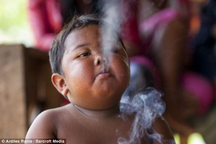 2岁的他一天抽烟40根,现在成了这样