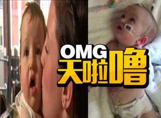 寄几宝宝太可爱,结果妈妈的狂亲让孩子成了脑瘫差点死掉!