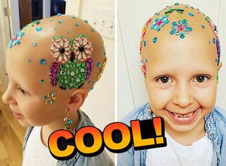 秃头,却让7岁女孩变得更闪耀美丽