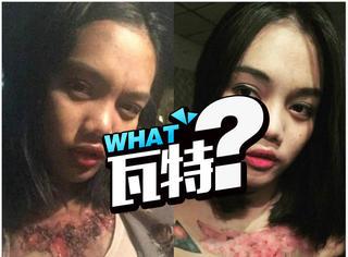 可怕,这是一个泰国姑娘除文身的失败案例