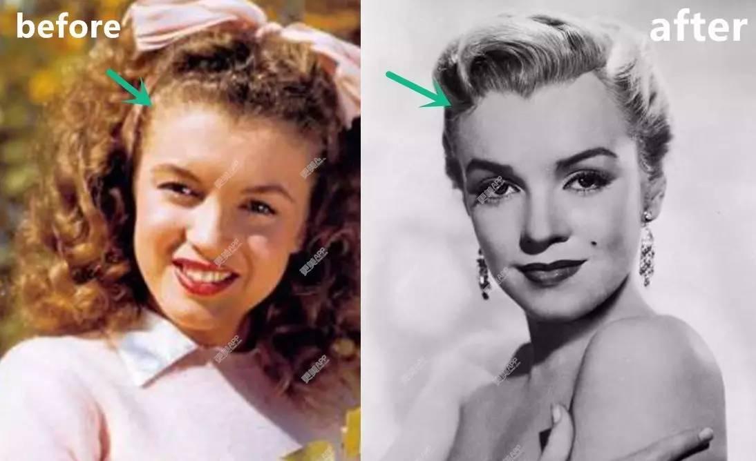 百年整形变迁史:抽肋骨瘦腰、电击去发际线,梦露和民国时期女星比baby整容更疯狂