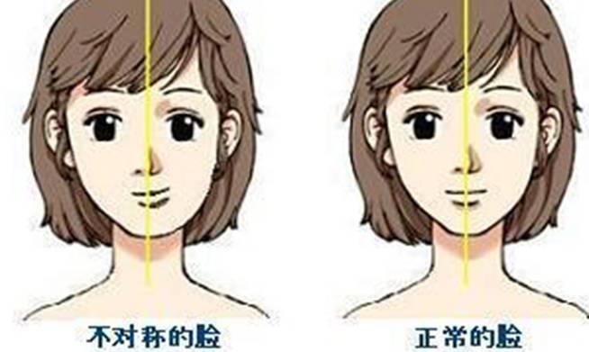 单侧咀嚼、单侧睡觉、跷二郎腿…你的脸正慢慢变不对称