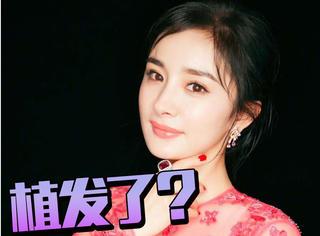 杨幂之前说你们批评她她就去植发,网友疑问难道真的去了?