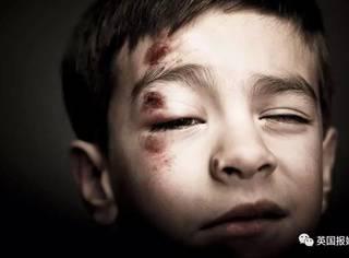 蛇蝎保姆:每周几百美金,换来病弱孩子被虐待?