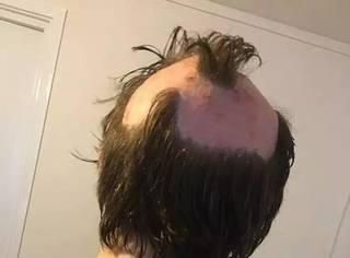 英国女子为省钱自己染发严重灼伤头皮,3个星期内接受了6次手术!