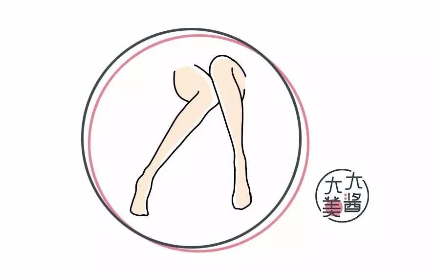 矫正O型腿的手术你敢做吗?不如学学这些办法?