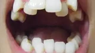 霓虹人牙齿烂,连他们自己都很无奈啊!!然而这背后的原因,父母们要重视...