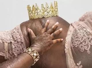 全身85%被烧伤的妈妈拍下最美孕照